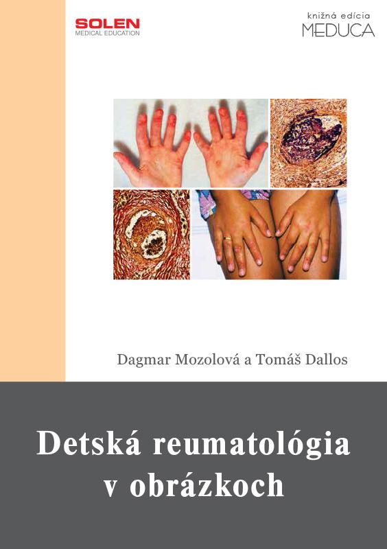 Detská reumatológia v obrázkoch